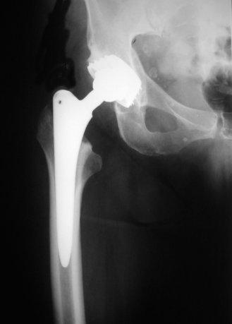 protesianca