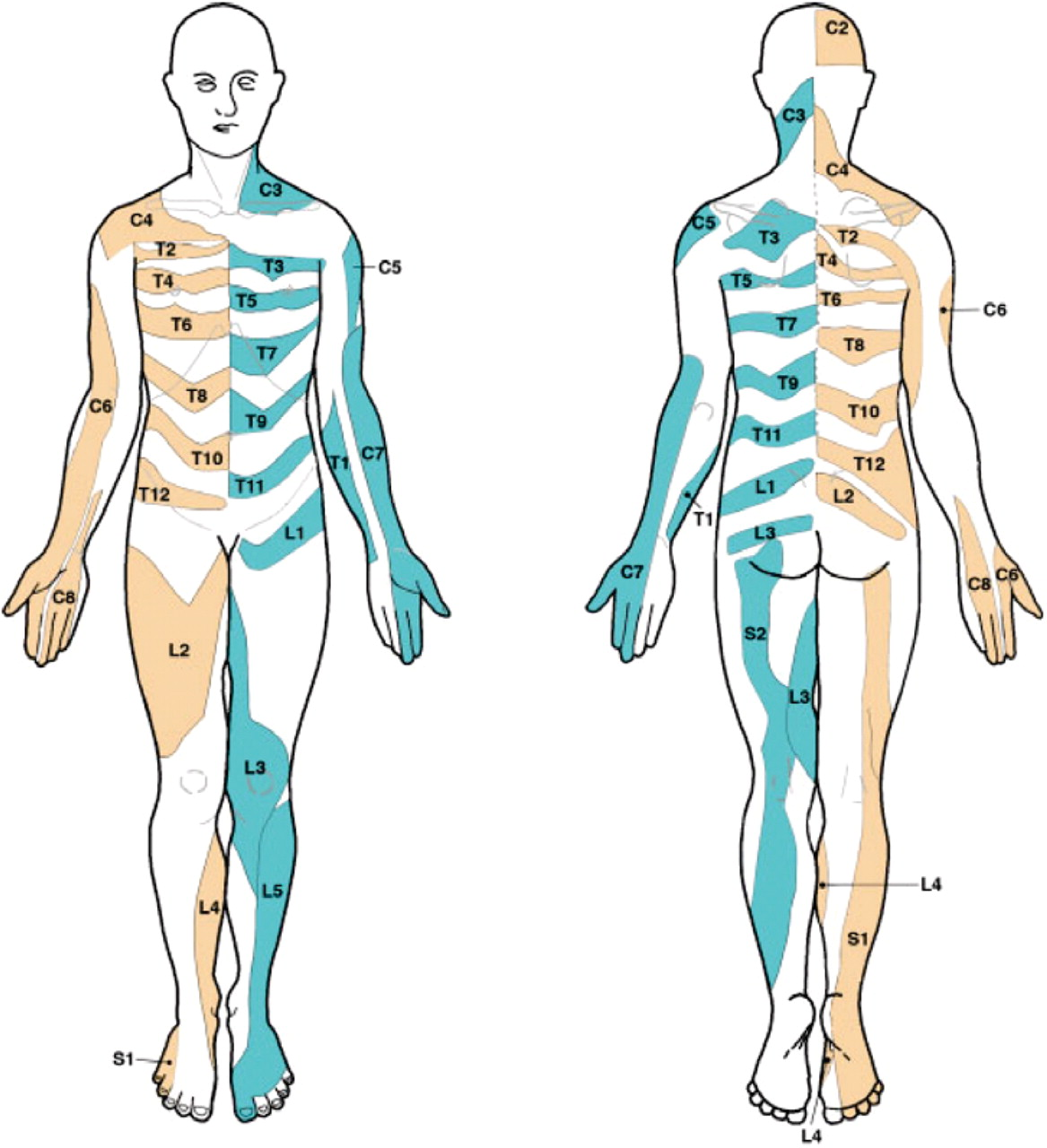 Dermatome Map http://www.fisiobrain.com/web/2011/conflicting-dermatome-maps-educational-and-clinical-implications