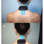 Short-Term Effects of Cervical Kinesio Taping on Pain and Cervical Range of Motion in Patients With Acute Whiplash Injury: A Randomized Clinical Trial