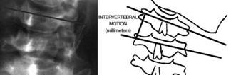 Analisi radiologica della mobilità intervertebrale del segmento ipomobile
